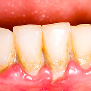 Parodontalerkrankungen